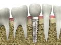 Durbach, Zahnersatz, Implantologie